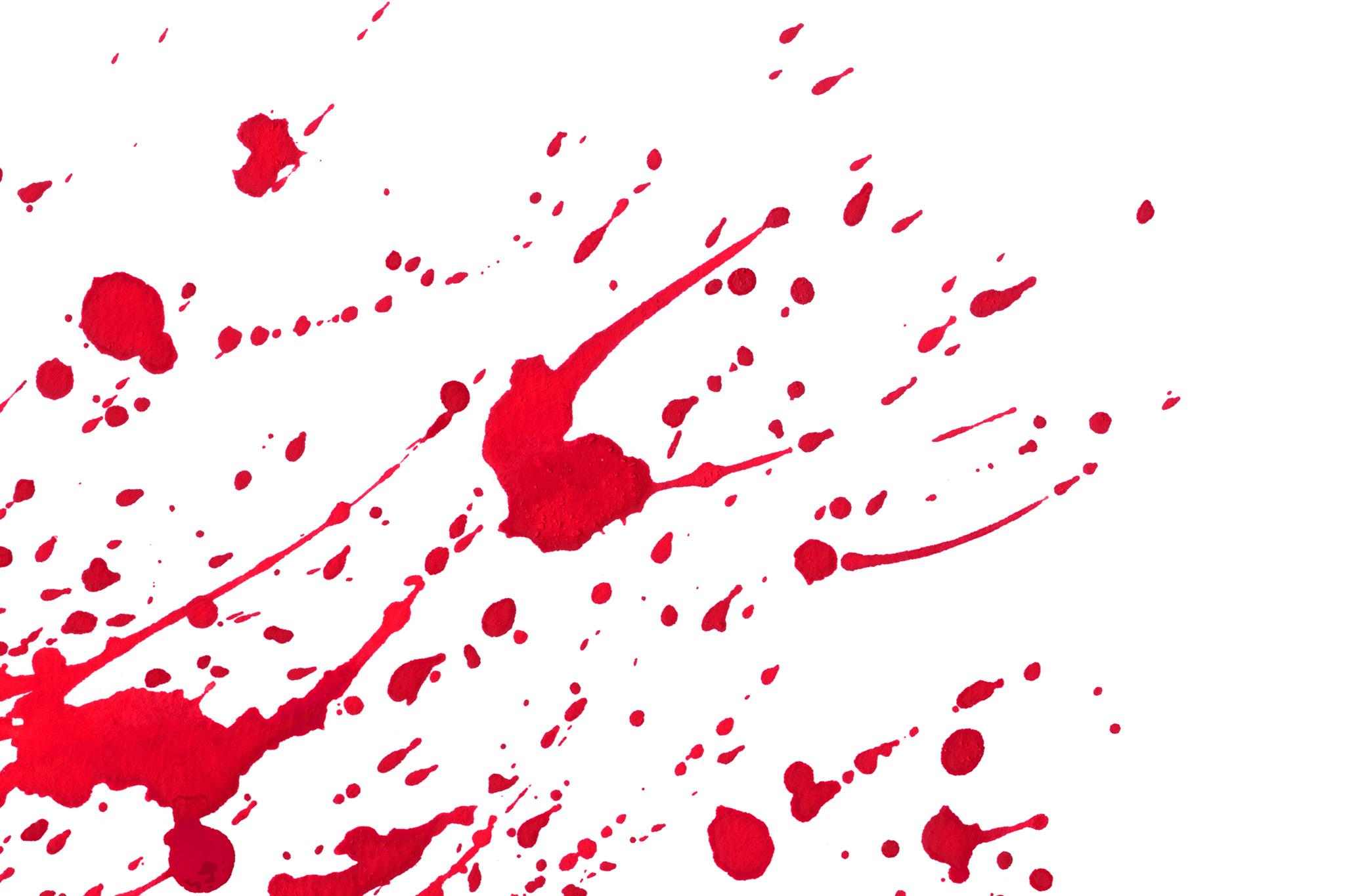 「返り血のような赤い絵具の模様」